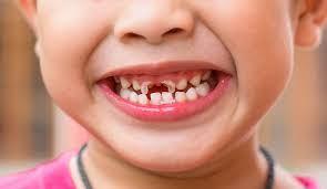 Bolehkah Langsung Menyikat Gigi Setelah Makan Manis?